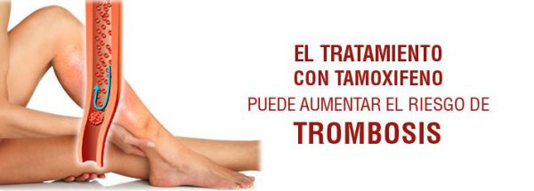 tamoxifeno_riesgo_trombosis-2455175