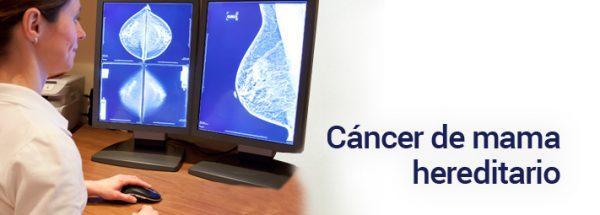 cancer-de-mama-hereditario-600x215-9643134