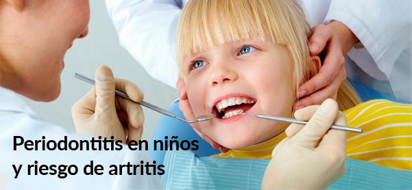 periodontitis-en-nic3b1os-y-riesgo-de-artritis-blog-8317688
