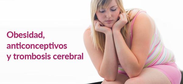 obesidad-anticonceptivos-y-trombosis-blog-7601322