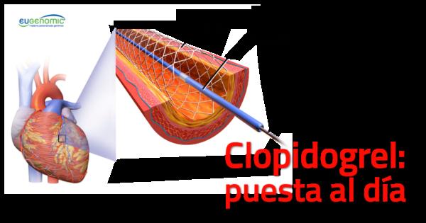 clopidogrel-stent-600x315-3080004