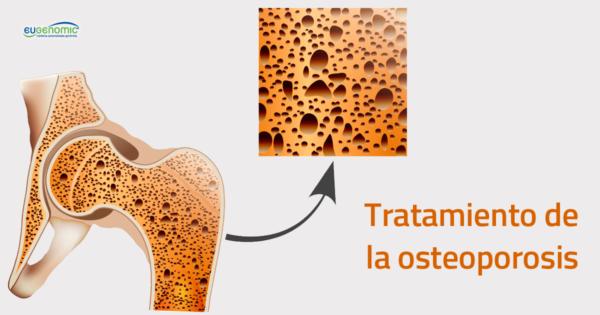 tratamiento-de-la-osteoporosis-600x315-2096644