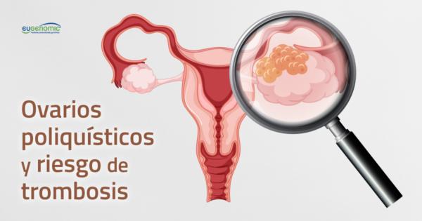 ovarios-poliquisticos-trombosis2-600x315-2578882